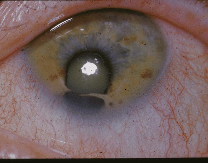 Coloboma de iris 1