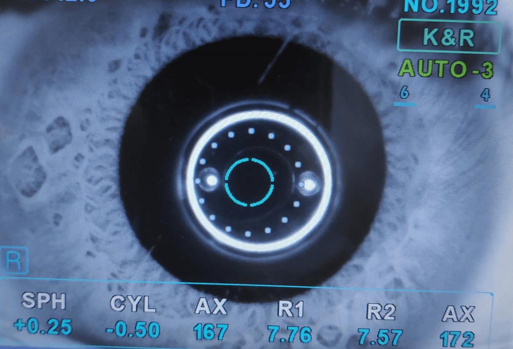 membrana pupilar persistente 1